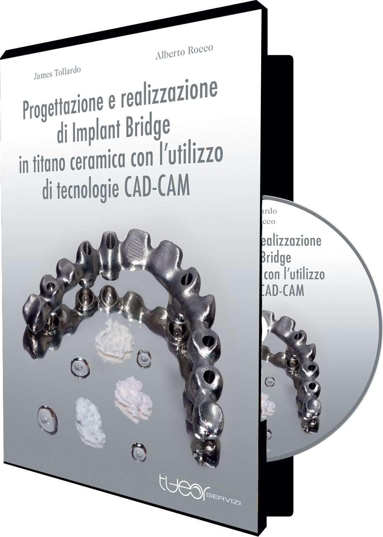 PROGETTAZIONE E REALIZZAZIONE DI IMPLANT BRIDGE IN TITANIO CERAMICA CON L'UTILIZZO DI TECNOLOGIE CAD-CAM